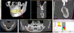 CTデジタル化画像